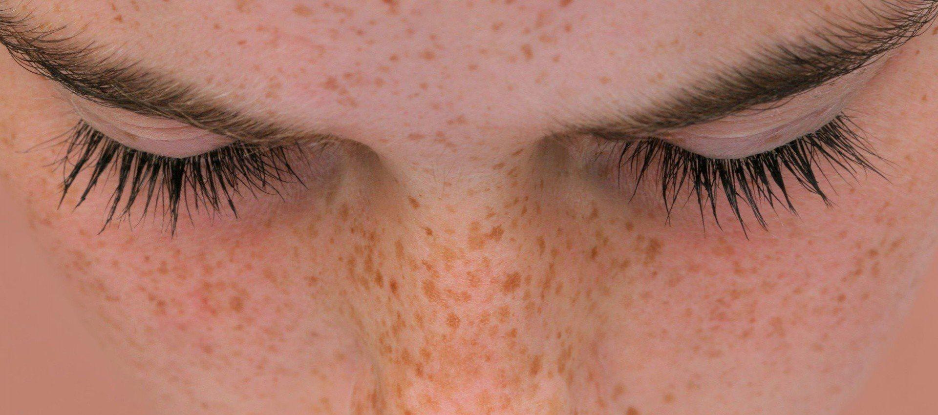 Co powoduje czarne plamy na twarzy